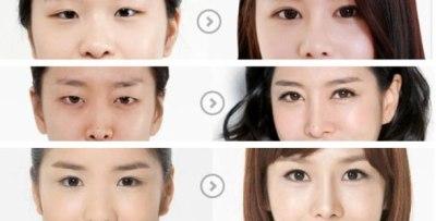 korean-eyes-surgery-1