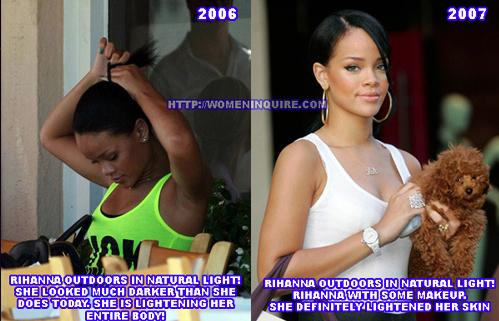 Rihanna-Skin-whitening.jpg